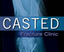 CASTED: Fracture Clinic